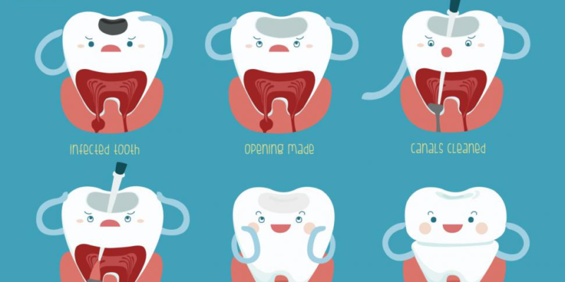 Myths Associated With Root Canals