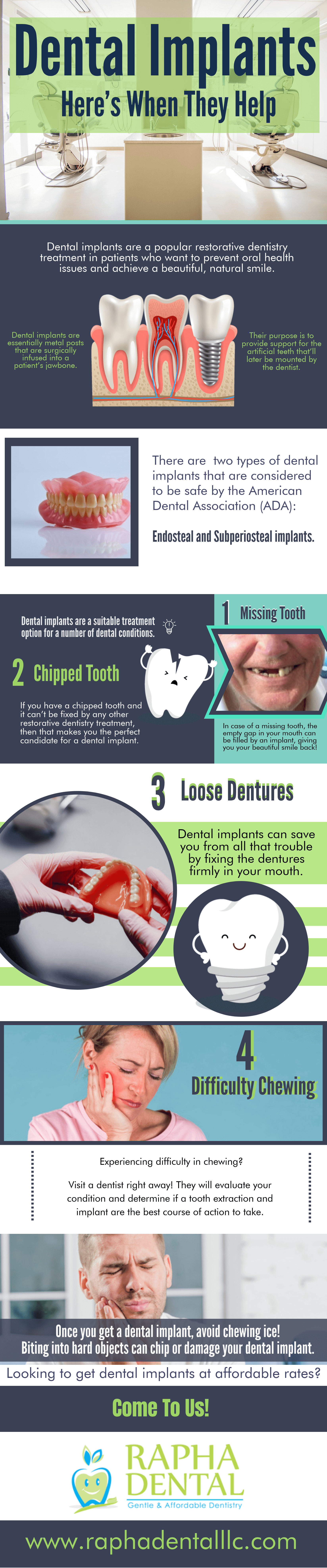 Dental Implants Here's When They Help