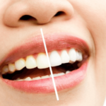 3 Common Dental Problems And How To Avoid Them