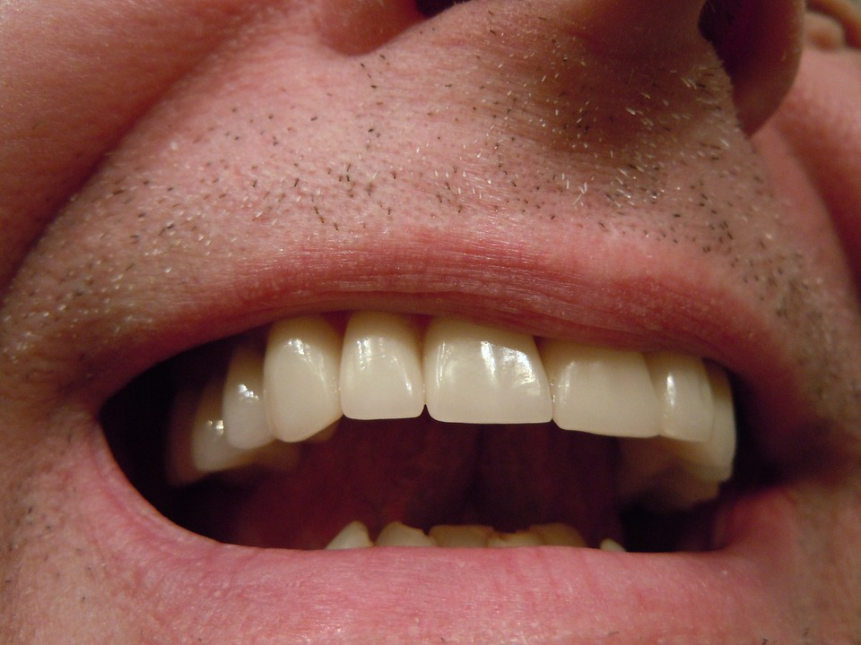 What is a dental inlay?