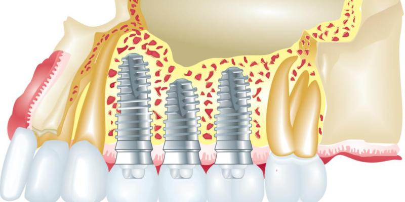 4 Myths about Dental Implants Debunked