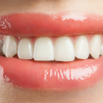 3 Things that Stain Teeth
