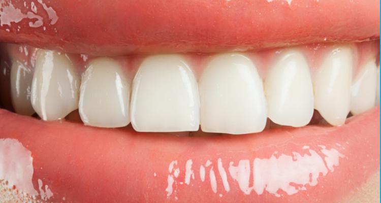 3 Things that Stain Teeth