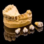 Dental Implant Surgery: Things to Avoid Immediately After Treatment