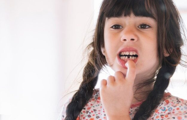 A young girl looking at herself after losing her front tooth