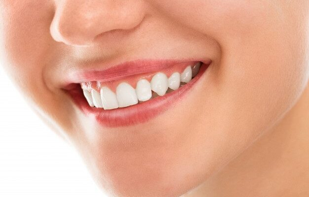 A woman with healthy gums and white teeth smiling