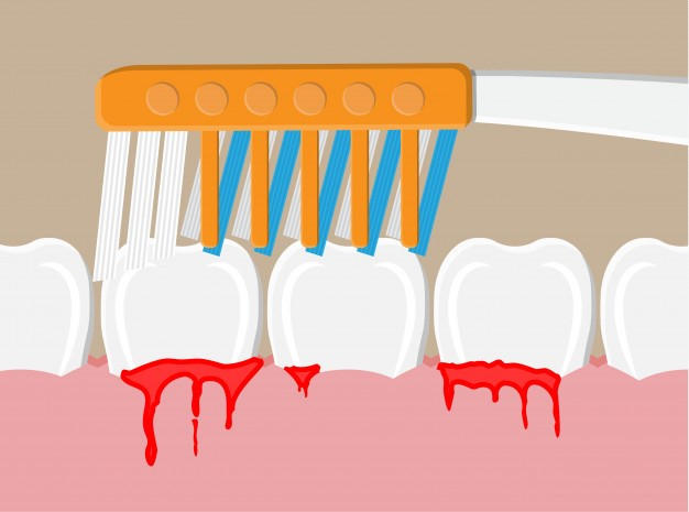 an illustration of bleeding gums while brushing teeth