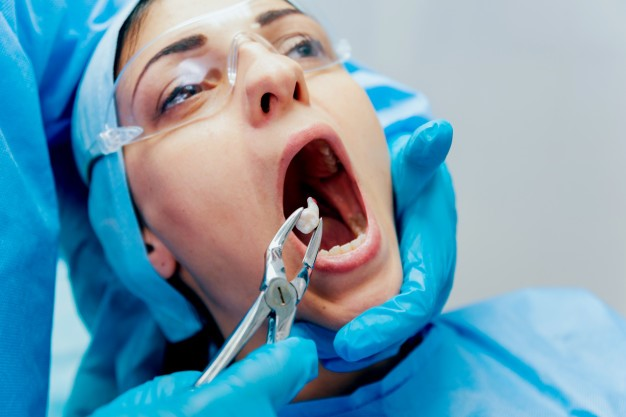 Dentist wearing blue gloves extracting a tooth with forceps