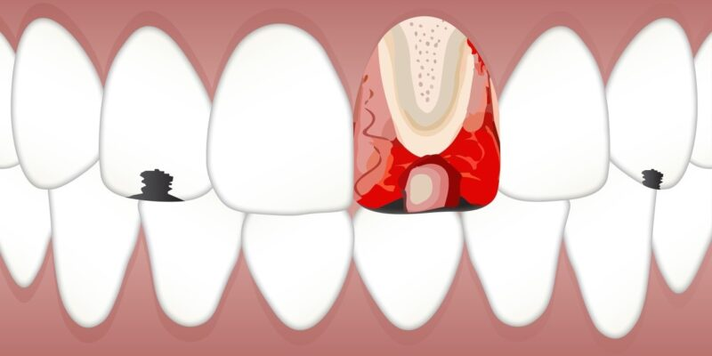 An animation of our teeth and gums showing the internal structure of a tooth