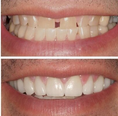 Difference between a dental crown and natural teeth