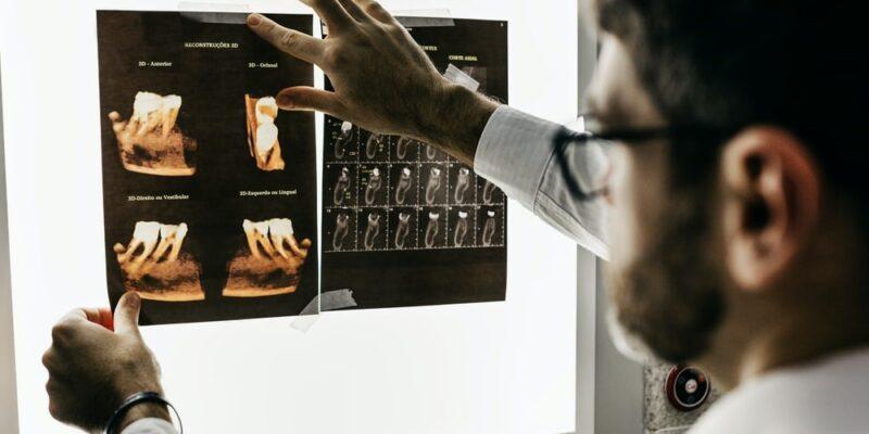 A dentist reading a dental X-ray